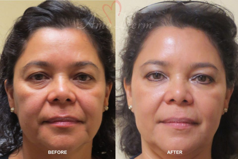Non-surgical face and eyebrow lift (liquid facelift)
