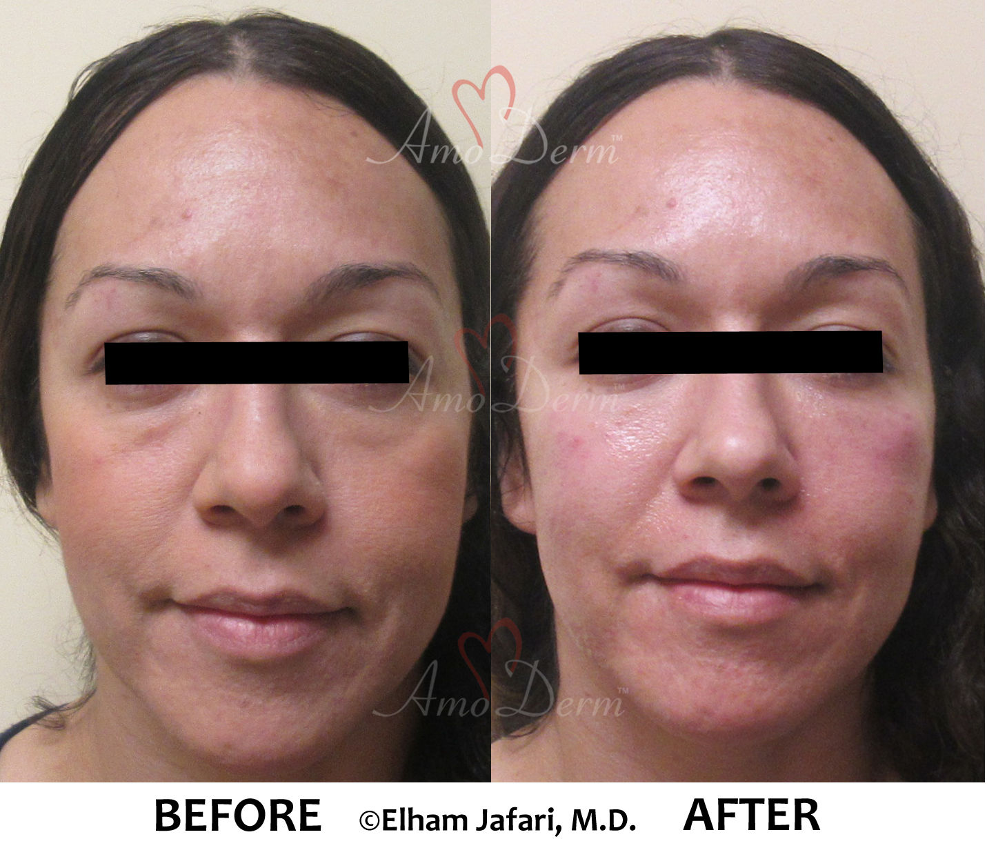 Dark Circles Under Eyes and Liquid Facelift
