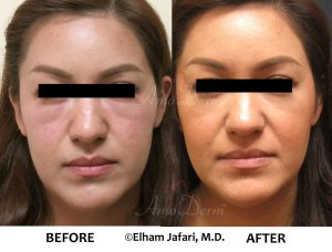 Liquid Facelift with dermal filler - Before & After Gallery Real Results at Amoderm