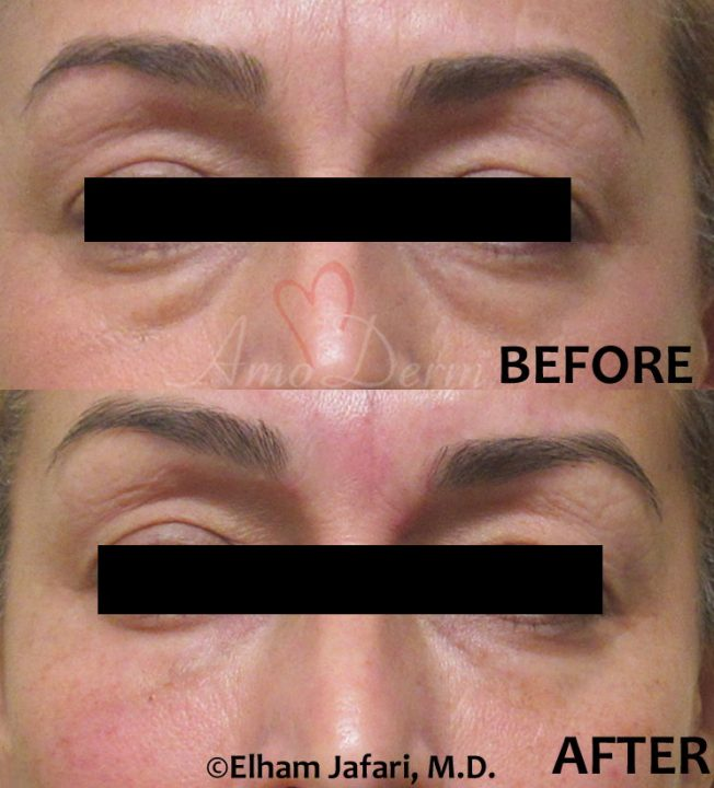 Restylane dermal filler for dark circles performed by doctor Jafari using Microcannula Technique