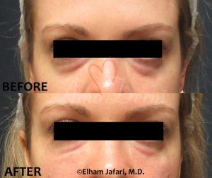 Dark circles : Before & After Gallery