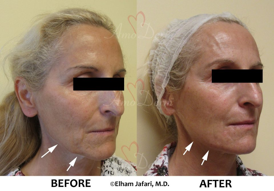 Dermal Filler of cheecks - before and after pictures