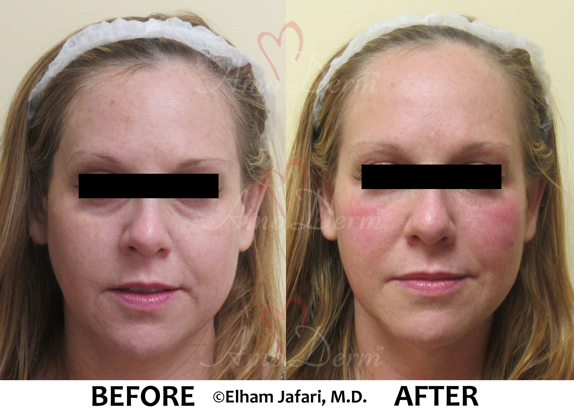 Dark Circles - Amoderm Before & After Gallery