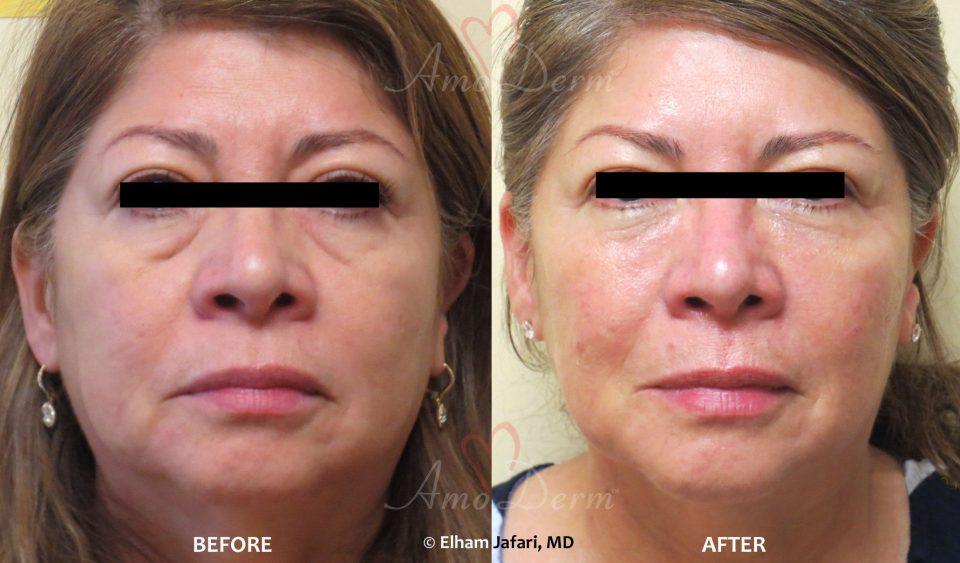 Non-surgical Face Lift (Liquid Facelift)