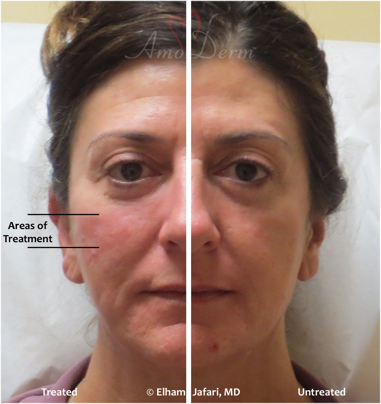 Cheeks Liquid Facelift