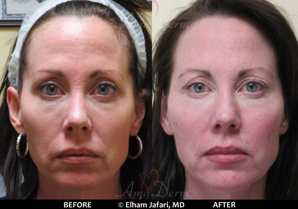 Liquid Facelift with dermal fillers Amoderm : Before & After Gallery