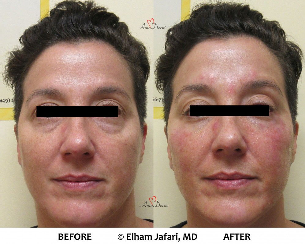 Liquid Facelift and Dark Circles