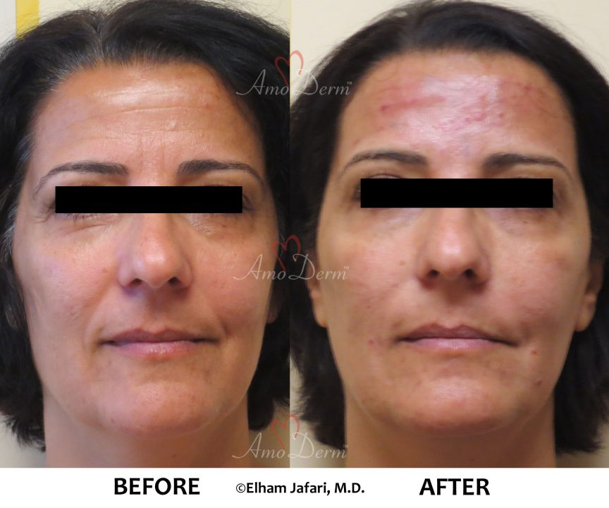Liquid Facelift and Dark Circles Under Eyes