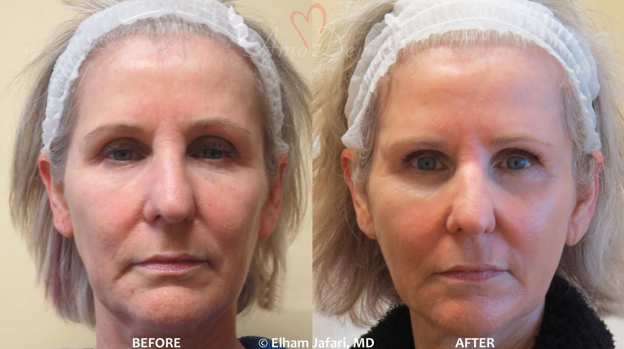 Amoderm : Liquid Facelift Before & After Gallery