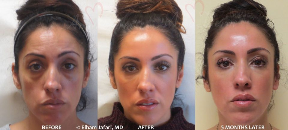 Amoderm : Liquid FaceliftBefore & After Gallery