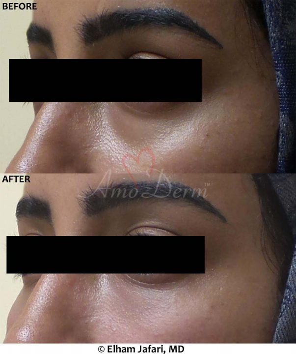 Dark Circles Under Eyes 220B