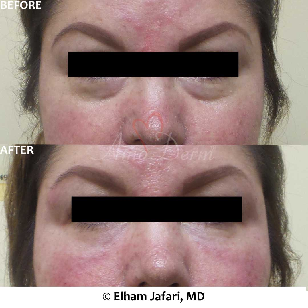 Treatment of dark circles, hollows or bags under eyes (puffy eyelids) with Belotero, Restylane or Volbella using micro-cannula technique