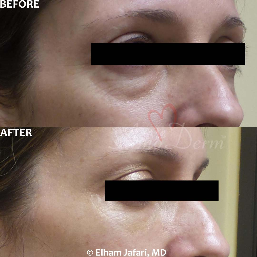 Dark Circles Under Eyes - Before & After Gallery Real Results at Amoderm