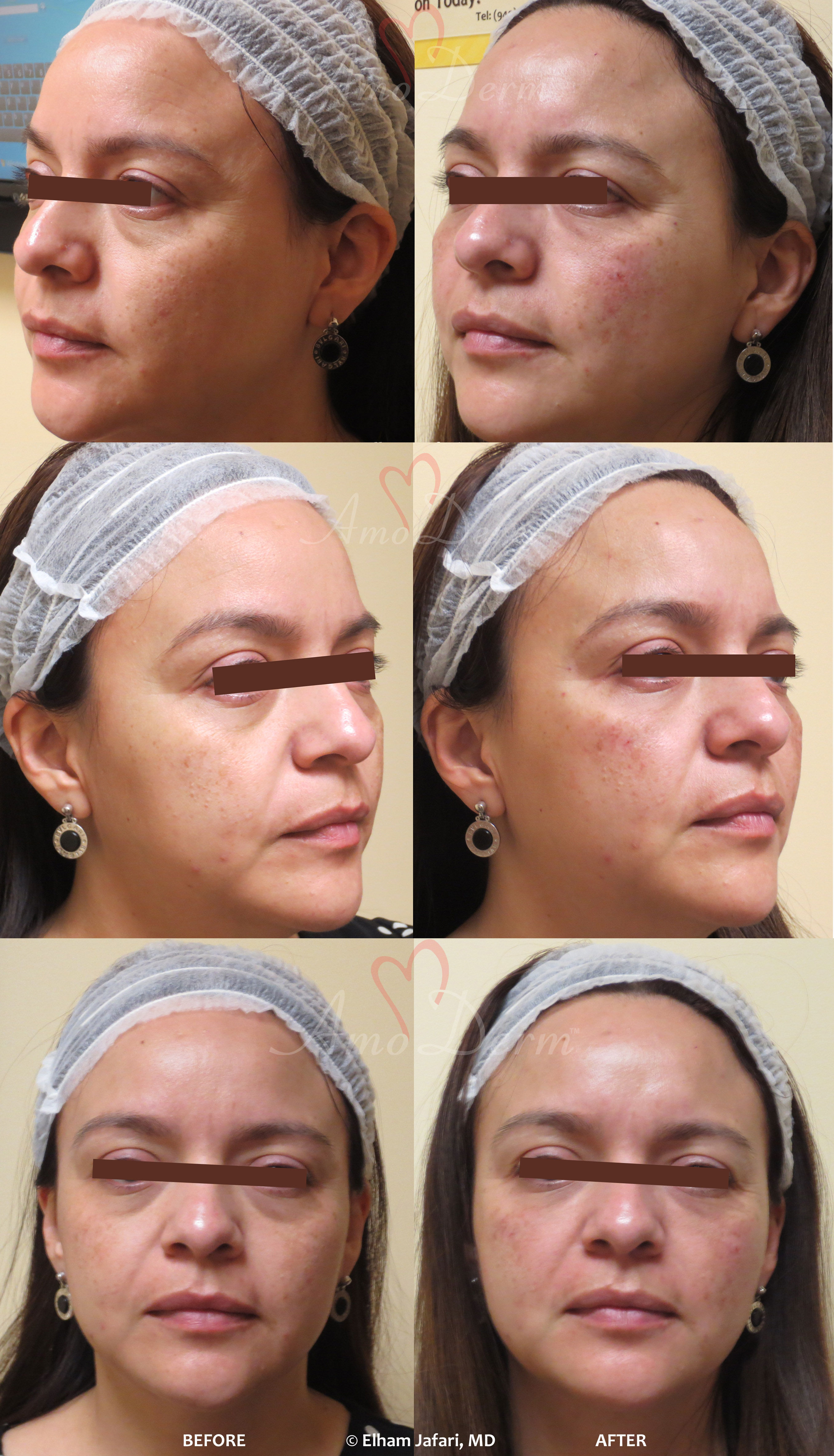 Amoderm : Dark Circles Before & After Gallery