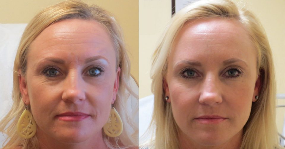 Amoderm : Cheeks Liquid Facelift Before & After Gallery