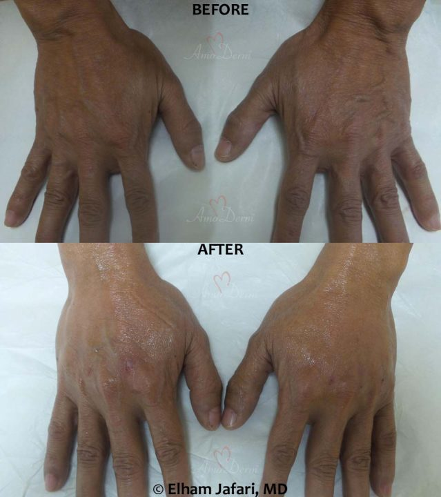 Hand Rejuvenation: Before & After Gallery from Amoderm