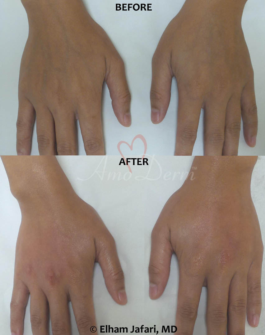Hand Rejuvenation 8A
