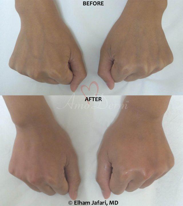 Hand Rejuvenation 8B
