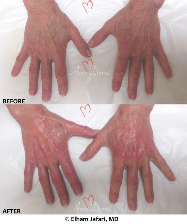 Hand Rejuvenation with Radiesse