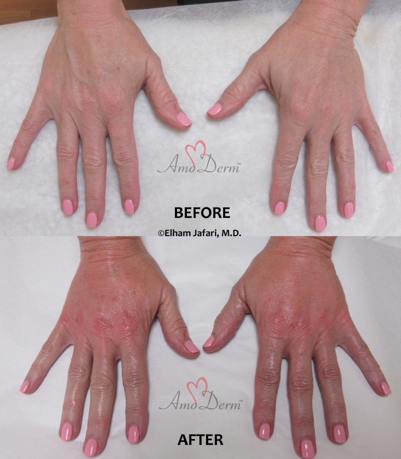 Hand rejuvenation with filler injection