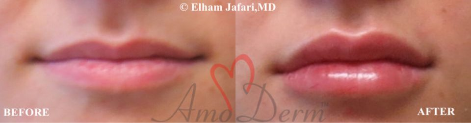 Amoderm : Lip Augmentation Before & After Gallery