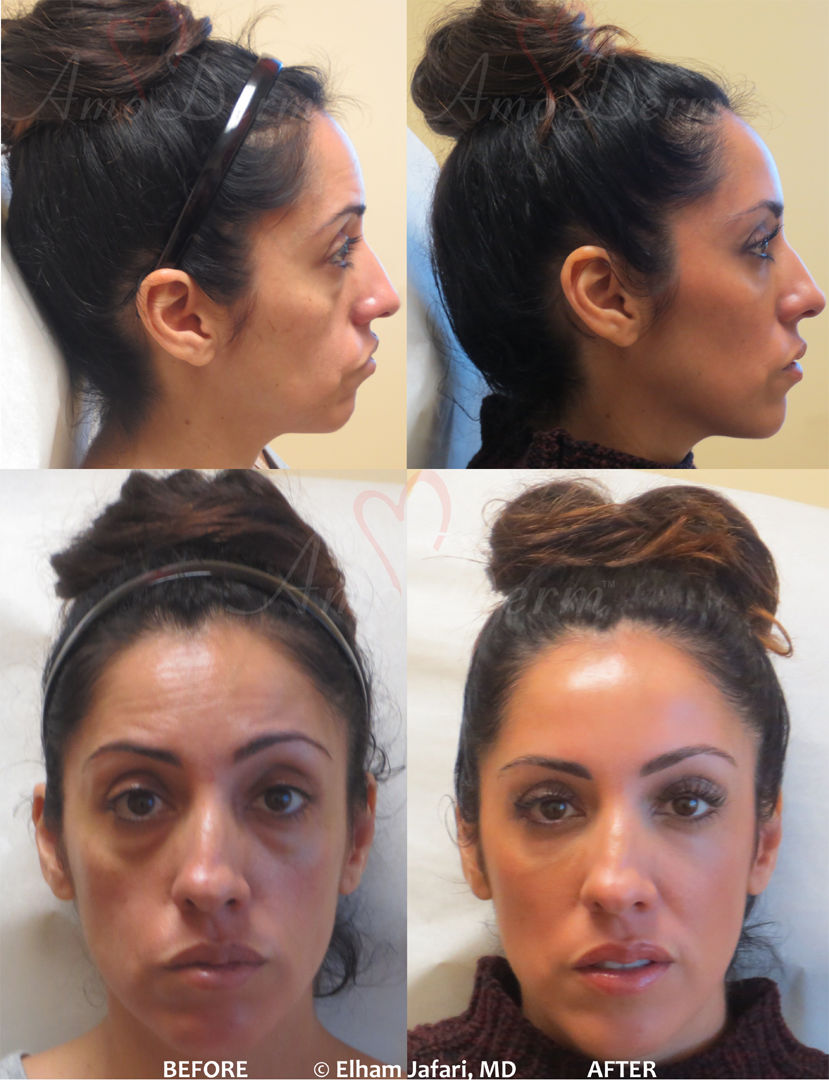 Amoderm : Liguid Facelift Before & After Gallery