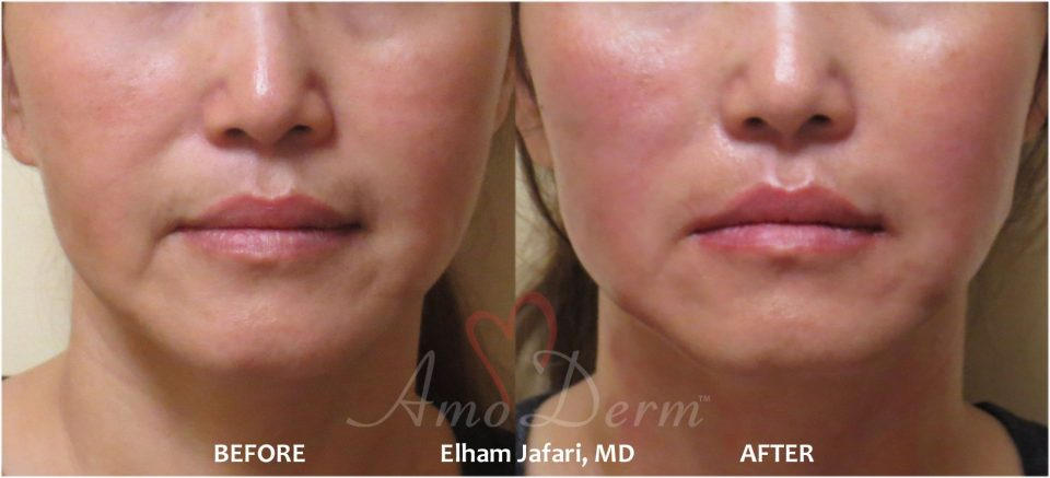 Amoderm : Thread Lift Before & After Gallery