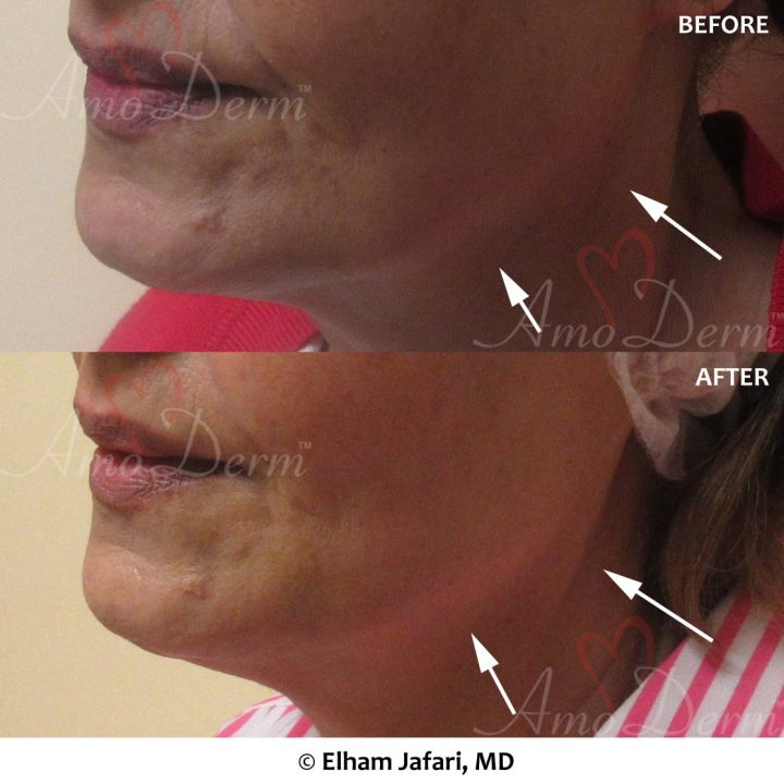 Jaw & Neck Lift