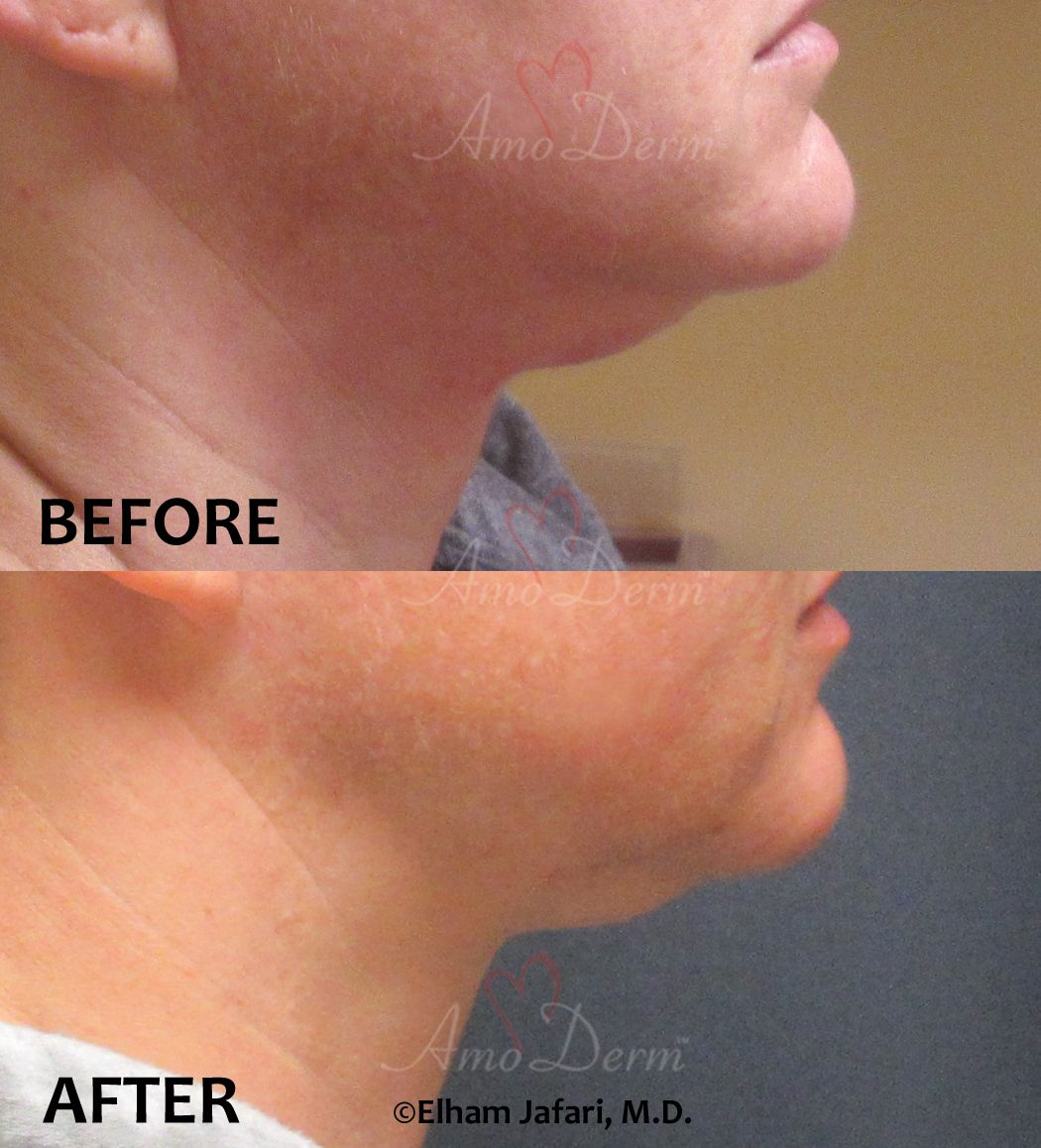 Kybella Amoderm Cosmetic Treatments