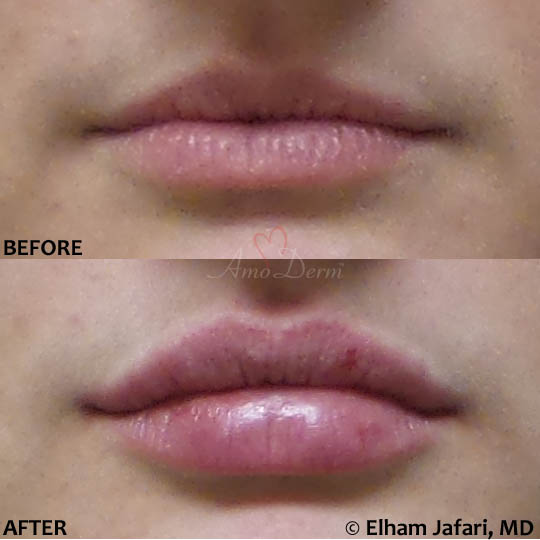 Lip Augmentation 46