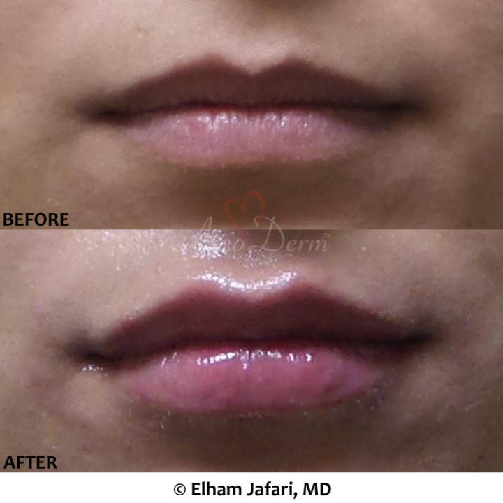 Lip Augmentation 49A
