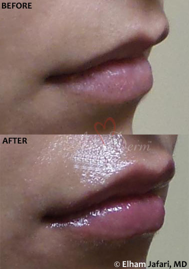 Lip Augmentation 49B