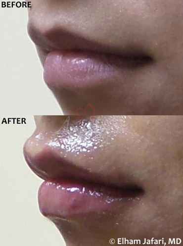 Lip Augmentation 49C