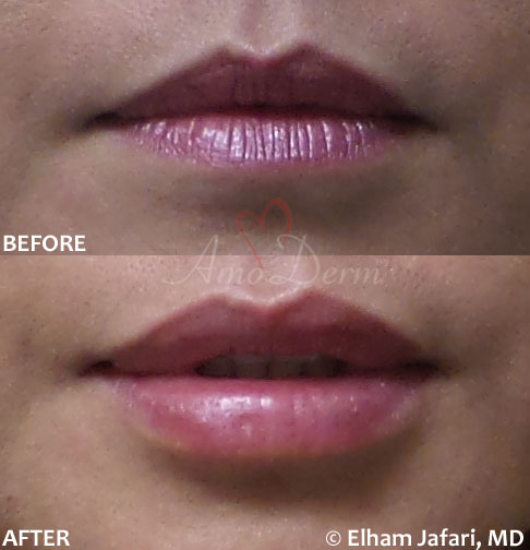 Lip Augmentation 50A