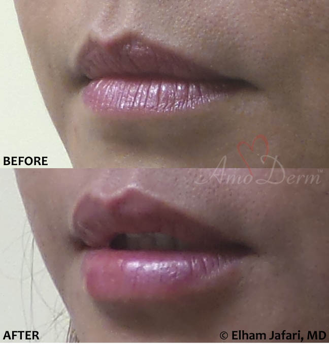 Lip Augmentation 50B