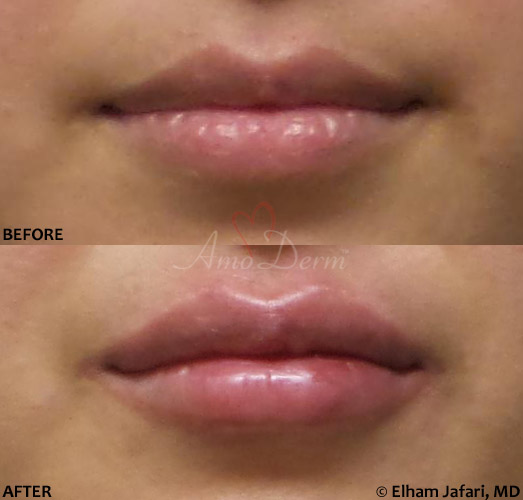 Lip Augmentation 51