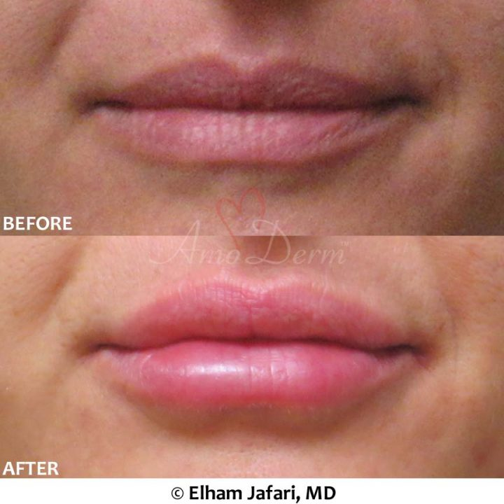Lip Augmentation 52