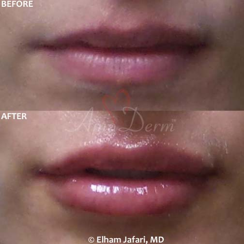Lip Augmentation: Before & After Gallery from Amoderm