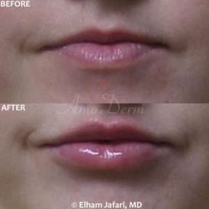 Lip Augmentation - Before & After Gallery Real Results at Amoderm