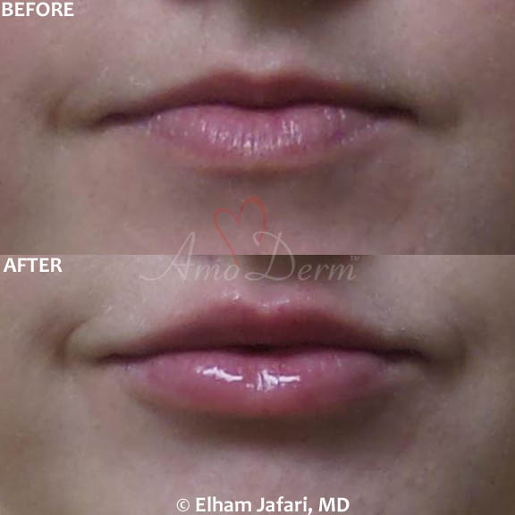 Lip augmentation with hyaluronic acid filler (Juvederm, Vollure, Volbella, Voluma, Restylane or Belotero) for balanced natural look & pout