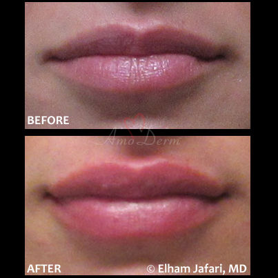 Lip augmentation with fillers Amoderm : Before & After Gallery
