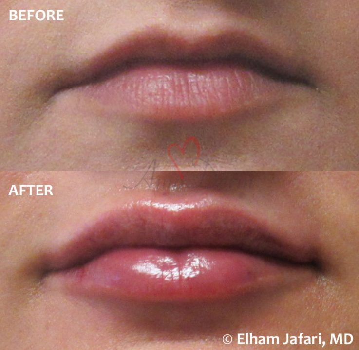 Lip Augmentation Amoderm : Before & After Gallery