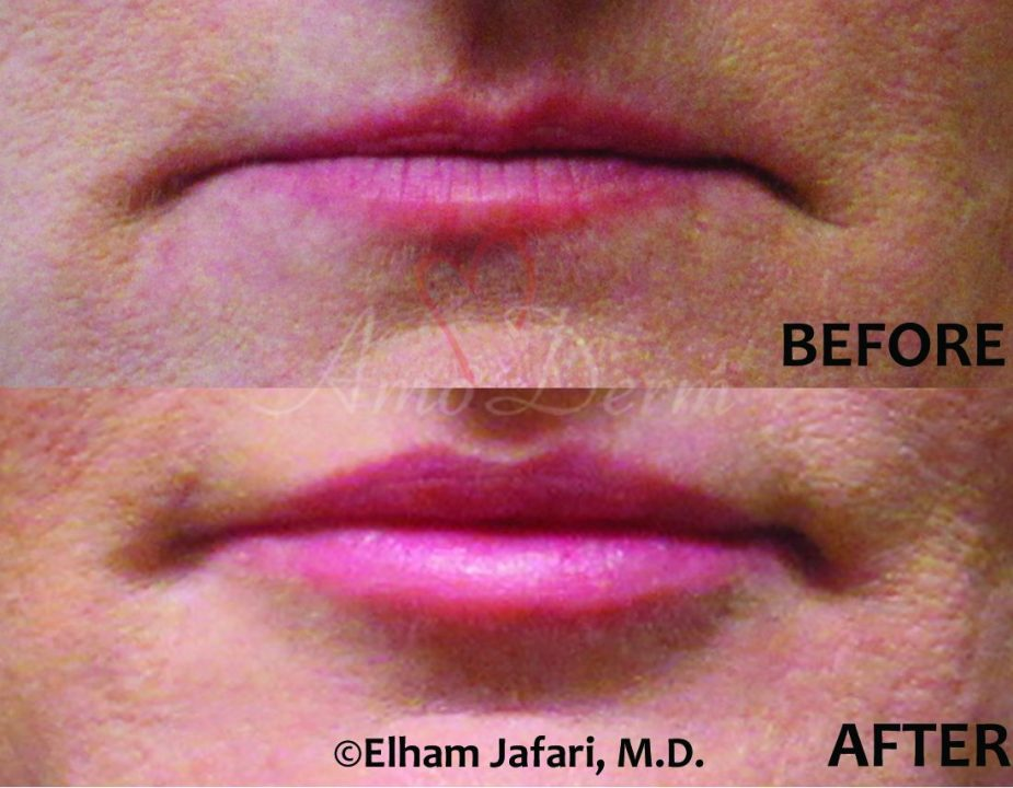 Lip Augmentation at Amoderm : Before & After Gallery