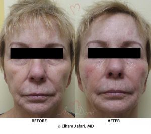Liquid Facelift - Before & After Gallery Real Results at Amoderm
