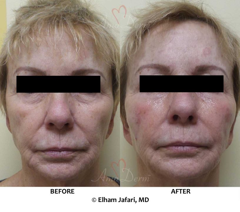 Liquid facelift & mid-face volume restoration with filler injection in cheeks and under eyes (Belotero, Restylane, Volbella and Voluma)