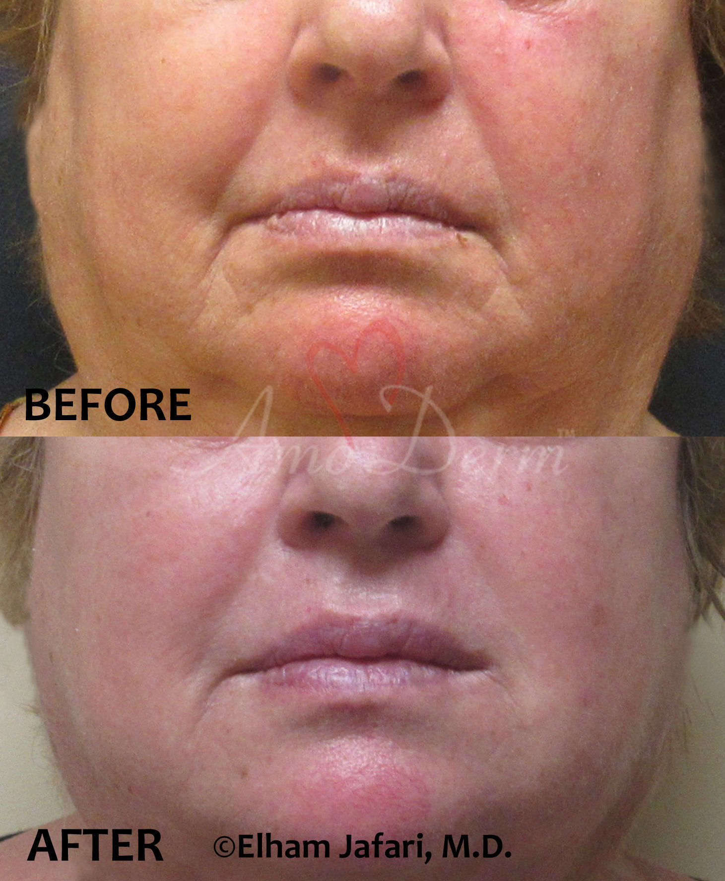 marionette lines - cosmetic treatments with Juvederm Vollure