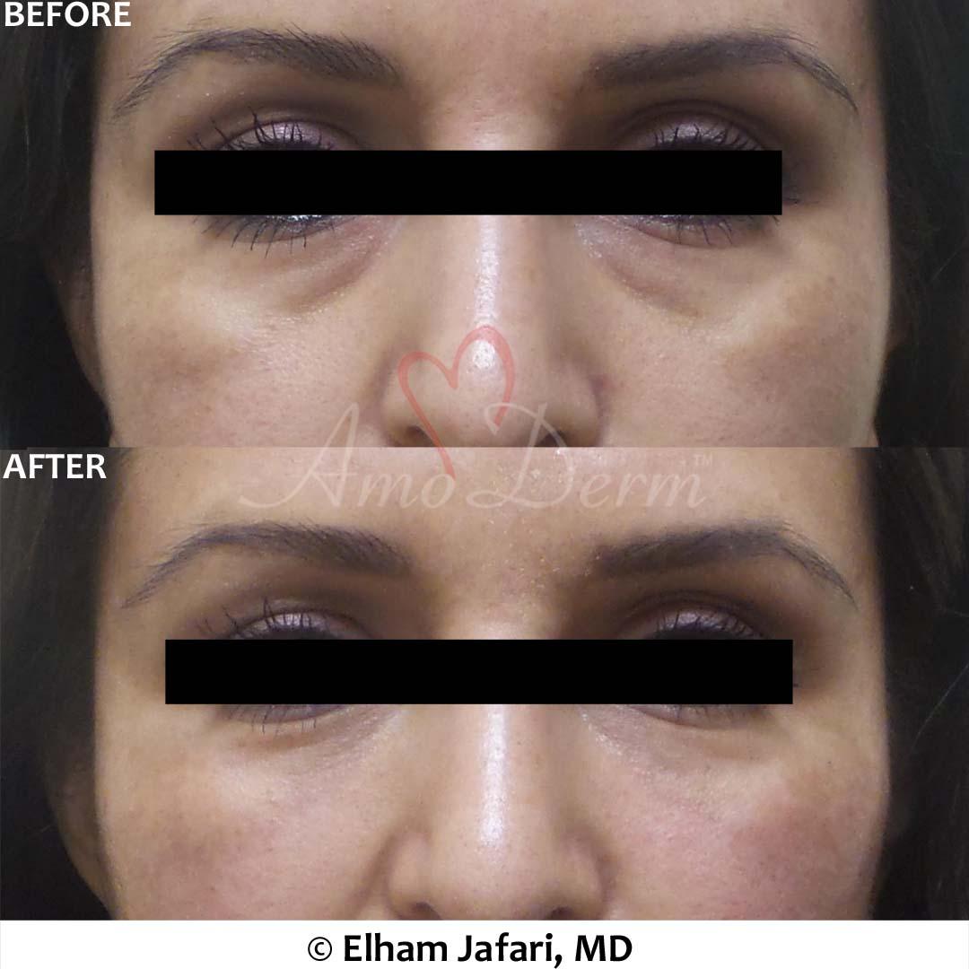 Mid-face Restoration