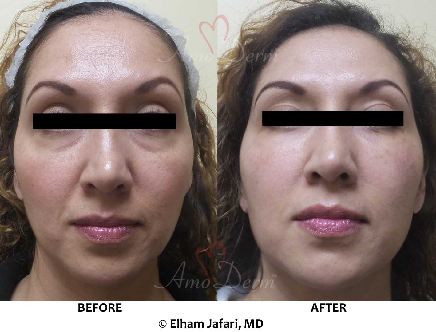 Midface Restoration
