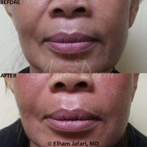 Nasolabial Folds - Before & After Gallery Real Results at Amoderm