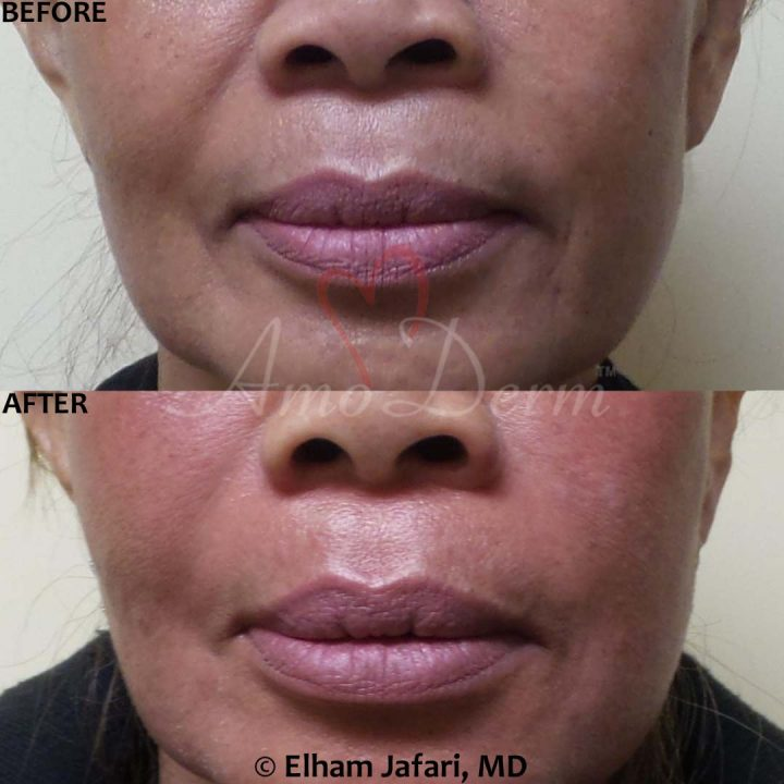 Treatment of nasolabial folds (laugh lines) with Juvederm, Radiesse, Voluma, Bellafill, Restylane or Vollure as part of Liquid Facelift